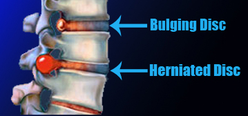 bulging disc and herniated disc