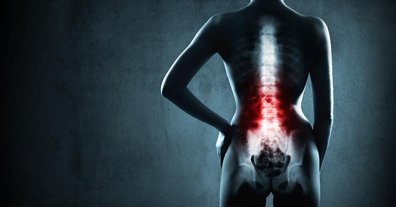 Chiropractic Care and X-Ray